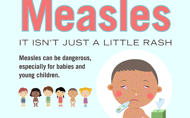 How To Treat Measles Naturally