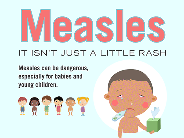 Notice to parents about measles
